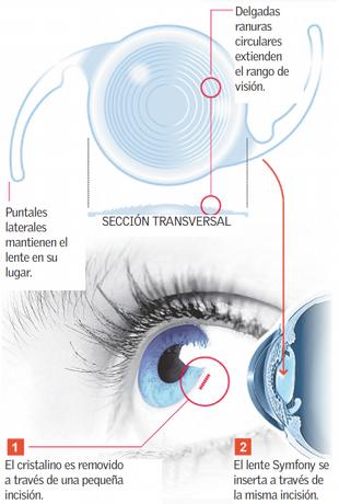 Lentes Intraoculares con rango de visión extendido.EDOFF