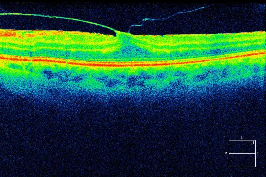 Ocriplasmina como alternativa a la tracción vitreomacular