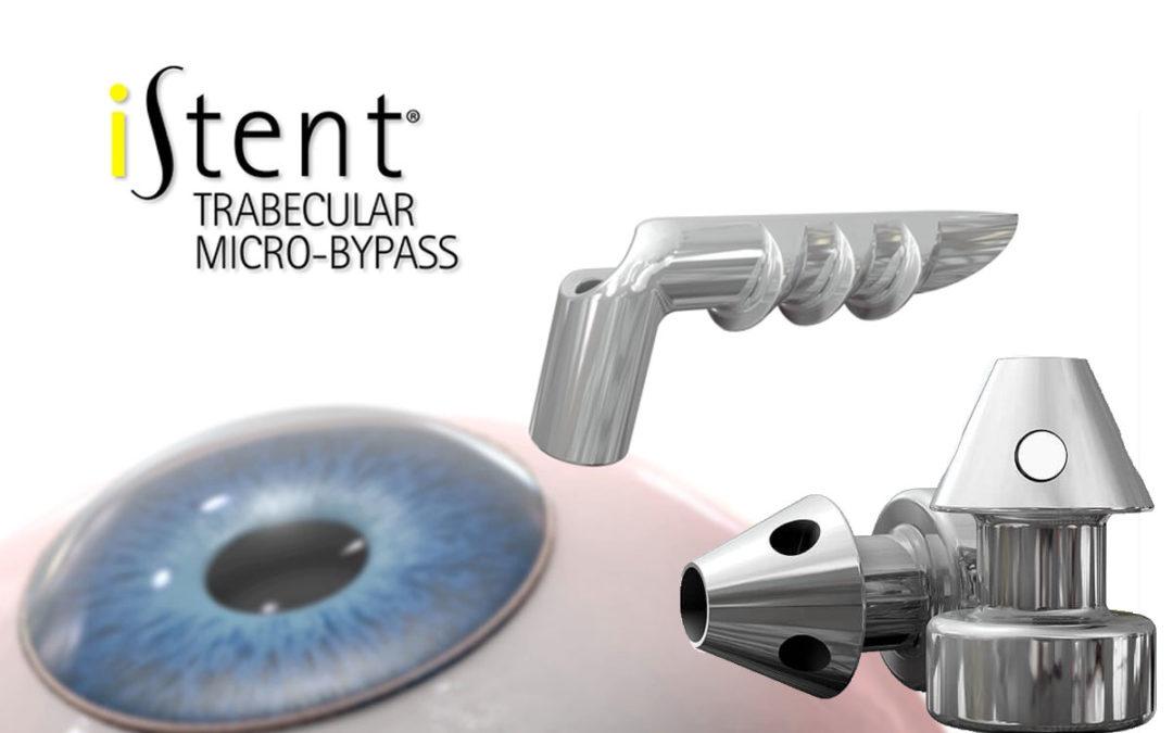 I-Stent. Nuevo dispositivo para cirugía combinada de Glaucoma y Catarata.