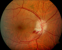 NOIA o Neuropatía optico isquémica anterior