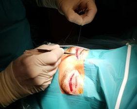 cirugia-de-parpados-marbella
