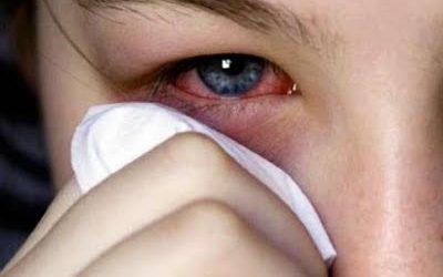 CONJUNTIVITIS VIRICA. LA REINA DEL VERANO